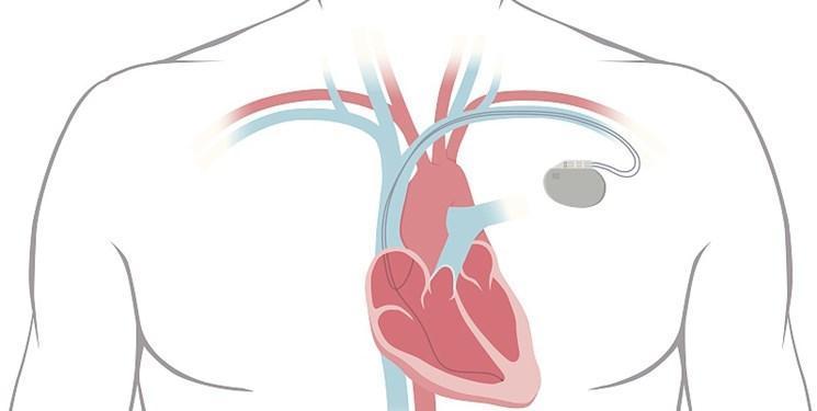 ساخت ضربان سازهای مصنوعی که از ضربان قلب انرژی می گیرند