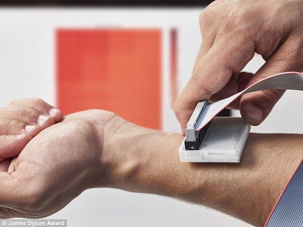 ردیابی سرطان پوست با یک دستگاه ارزان