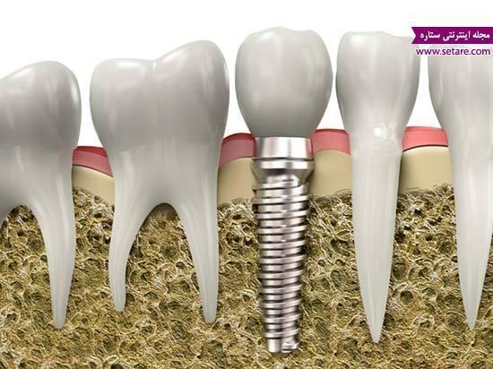 ایمپلنت دندان جلو و تاثیر آن در زیبایی