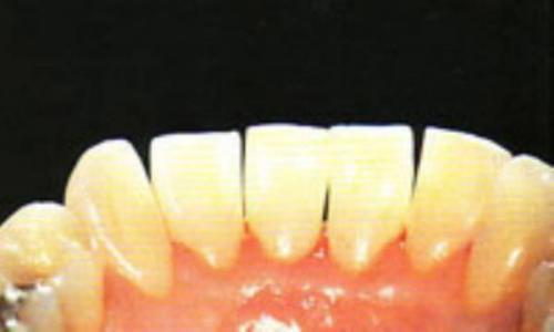 اگر جرم گیری نکنید، دندانتان لق می گردد